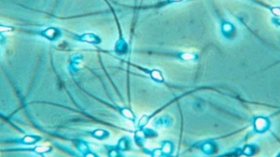 leykotsiti-v-sperme-pri-eko