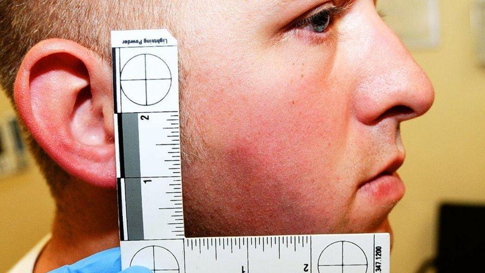 Foto: Scanpix Skaderne efter slåskampen med Michael Brown blev dokumenteret på hospitalet umiddelbart efter skudepisoden. - 23574216-20141125-074458-4