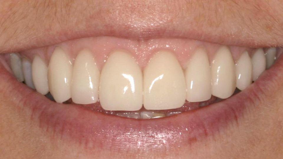 tænder på vej