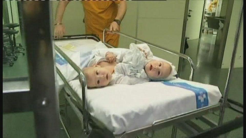 siamesiske dyre tvillinger